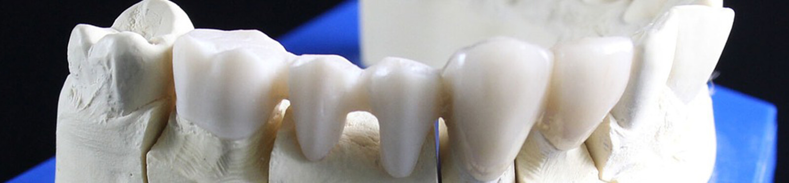 Feste Zähne mit Brücke
